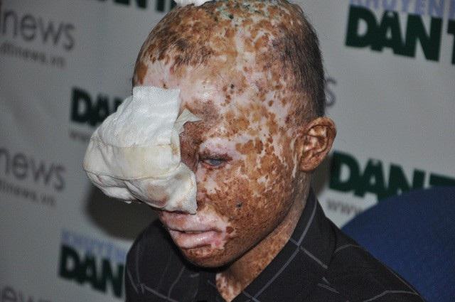 Bị căn bệnh ung thư da khiến cho cậu bé Lượng luôn bị xa lánh bởi hình hài đáng sợ.