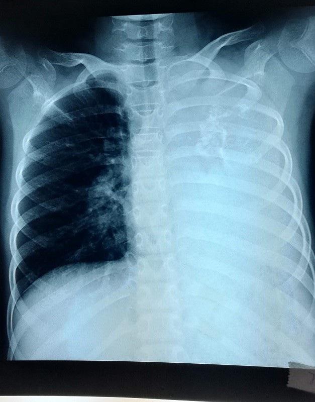Khối u lớn được phát hiện trên X-quang phổi bệnh nhi