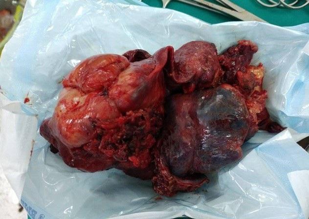 Bác sĩ đã cắt toàn bộ phổi phải và khối u, trọng lượng lên tới 1,5kg