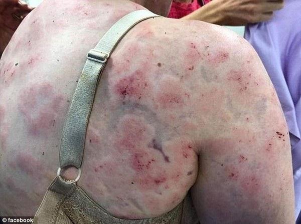 Fiona Simpson chịu nhiều thương tổn sau khi cô lấy cơ thể của mình để che chở cho con gái nhỏ