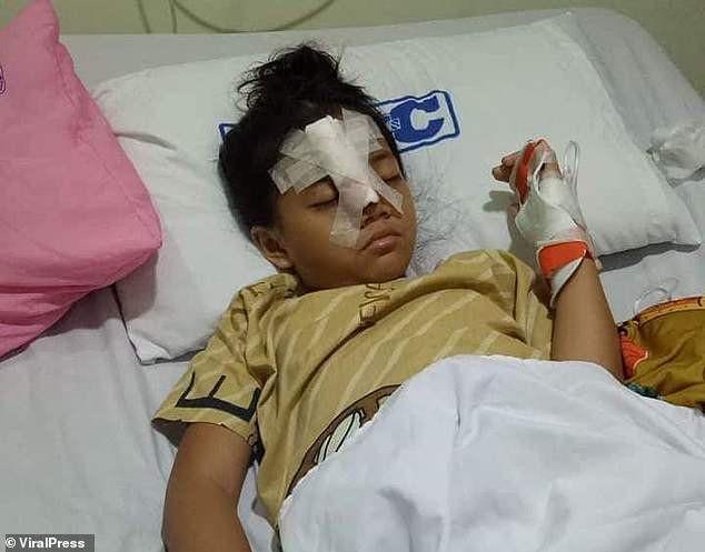 Cô bé Brielle bị vỡ mũi sau hành động mạo hiểm của mình