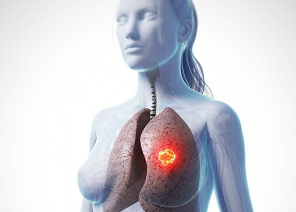 Ung thư phổi ở nữ giới và nguyên nhân ít ai ngờ tới - Ảnh 1.