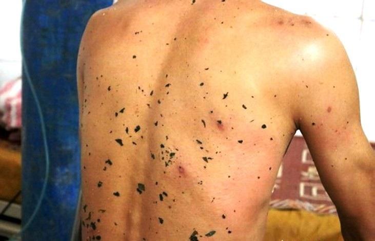 Một người tử vong, 10 người bị thương vì ong vò vẽ - Ảnh 1.