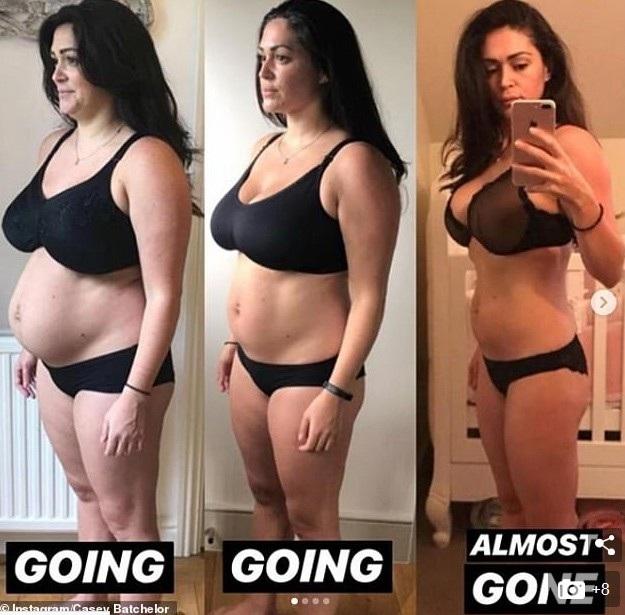 Người mẫu 34 tuổi chia sẻ những hình ảnh không hoàn hảo về bản thân và nói, hầu hết mọi phụ nữ đều như vậy sau sinh