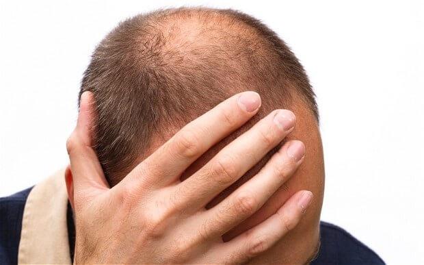 """Rụng tóc từng mảng nếu không kịp """"cứu"""" tế bào mầm tóc sẽ dẫn đến hói đầu."""