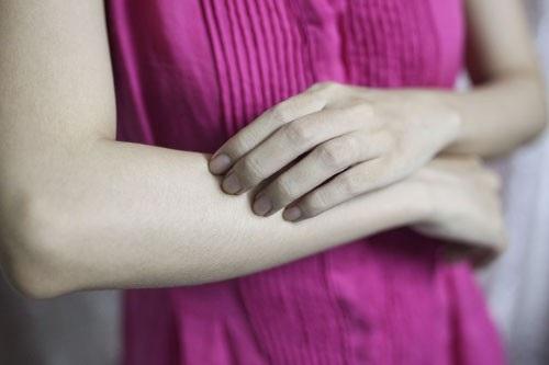 Nếu tình trạng ngứa da kéo dài, gây khó chịu nhiều, không rõ nguyên nhân, kèm phát ban, mề đay…, người bệnh nên đến bác sĩ, không nên tự ý bôi thuốc. Ảnh: HOÀNG TRIỀU