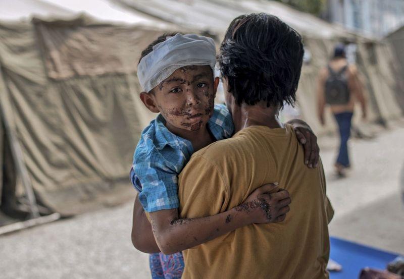 Một em nhỏ bị thương khắp cơ thể sau thảm họa kép ở Indonesia (Ảnh: AAP)