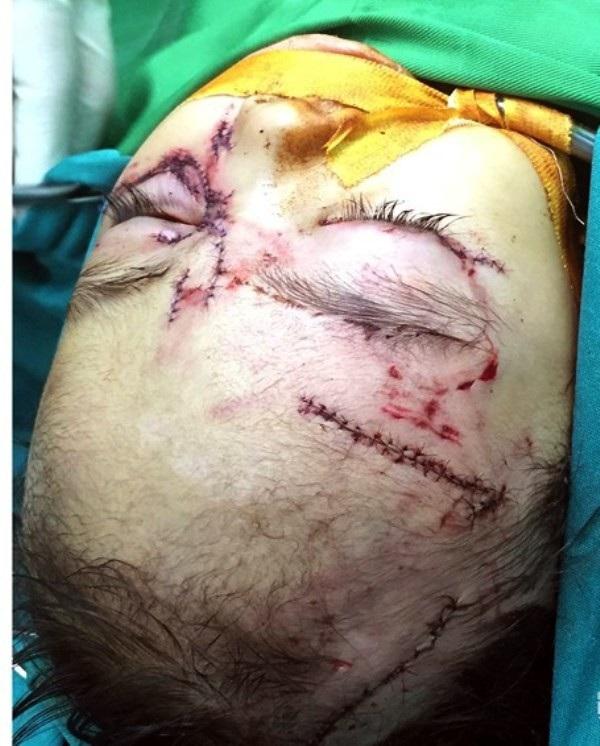 Khuôn mặt của cháu T.T.H.Y chằng chịt vết thương sau khi bị chó cắn.