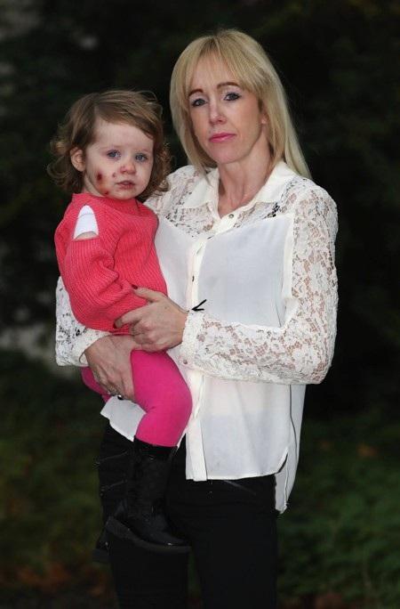 Mẹ bé Willow-Ivy Doherty vô cùng thương xót cho con gái