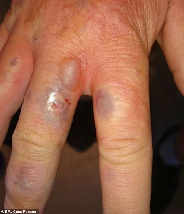 Những nốt phồng rộp xuất hiện giữa các ngón tay và trên mu bàn tay gây cảm giác nóng rát và ngứa ngáy không thể chịu nổi, khiến nạn nhân phải đến bệnh viện để nhờ giúp đỡ y tế