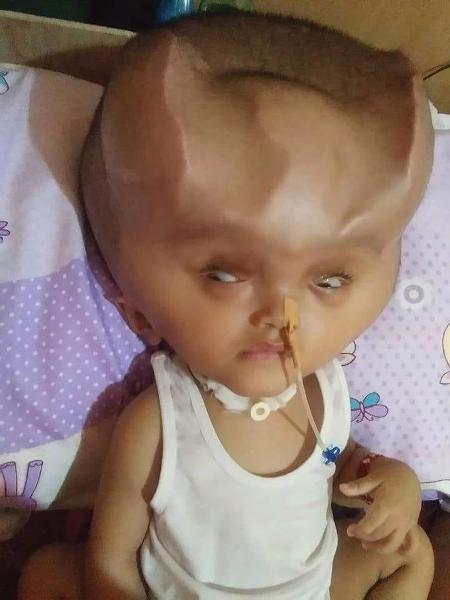 Cuộc phẫu thuật gần đây nhất của Clyne diễn ra vào ngày 6/11 để thay đường ống thở