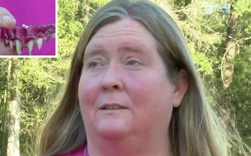Người phụ nữ bị... kẹt răng giả trong miệng vì hóa trang Halloween! - 1