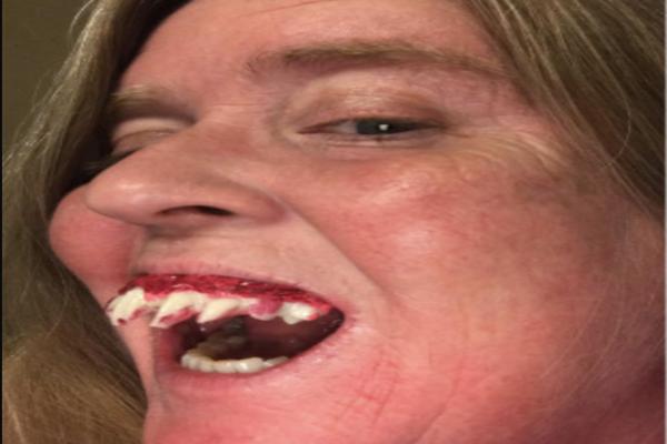 Người phụ nữ bị... kẹt răng giả trong miệng vì hóa trang Halloween! - 2