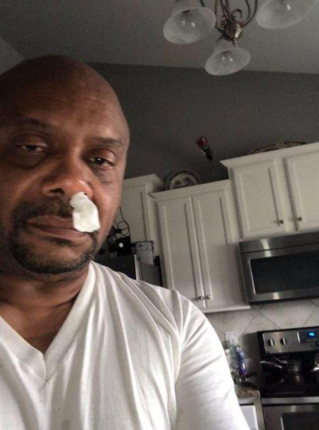 Greg đã được giải thoát sau 5 năm bị chảy nước mũi