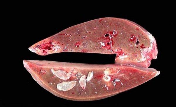 Sán lá gan lớn gây tổn thương gan