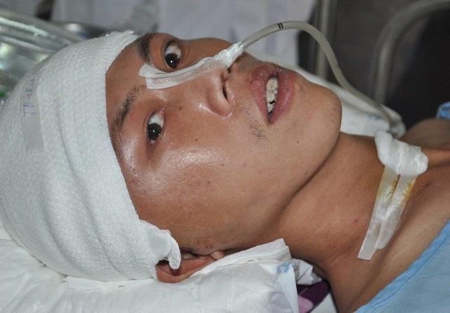 Bị tai nạn khi đang đi lao đông khiến anh Cao Tiến Lợi phải chuyển cấp cứu lên bệnh viện Việt Đức.