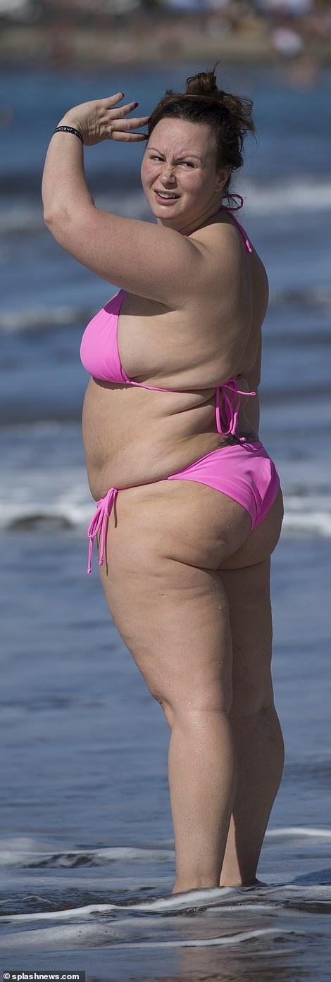 Vì tăng cân mà Chanelle bị đau lưng và bác sĩ nói khi cô giảm cân mới có thể hết đau lưng