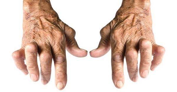Nhận biết viêm khớp dạng thấp qua biểu hiện chân tay sưng phồng