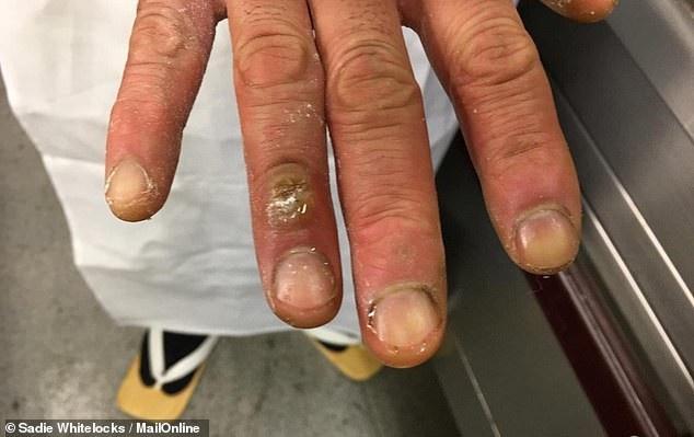 Đôi tay với những vết bỏng, ố vàng vì món ăn