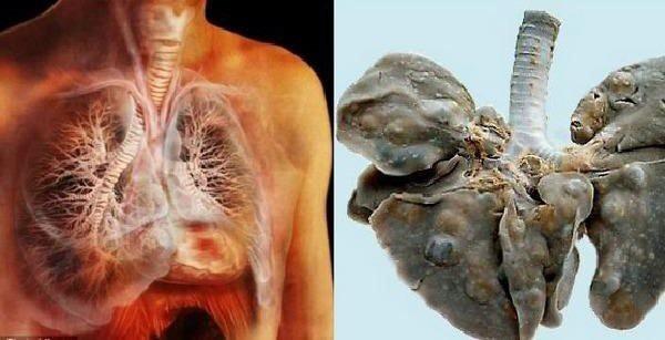 Lá phổi bị nhiễm sán