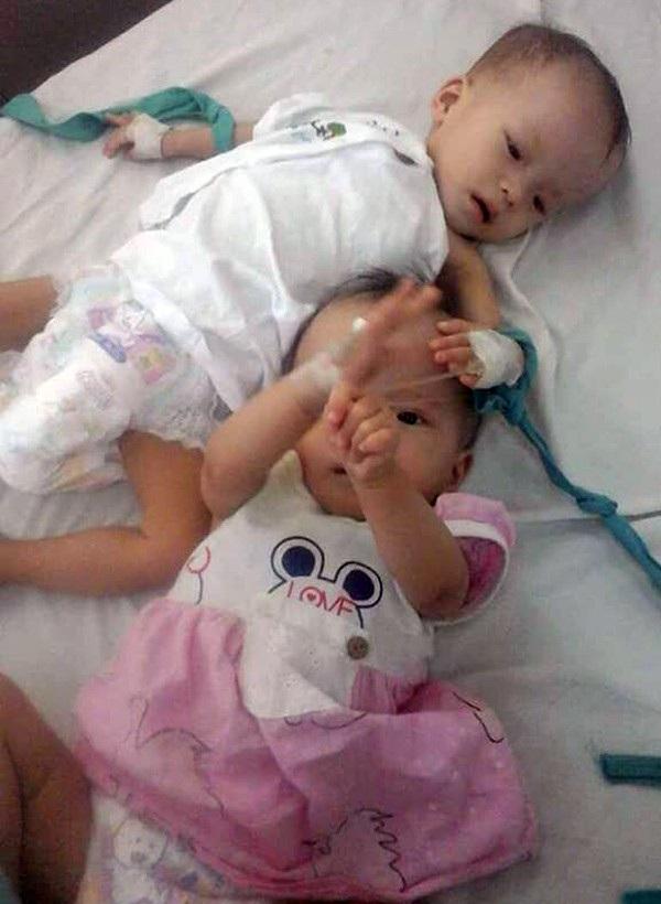 Hai bé Bảo Lâm (áo hồng), Bảo Loan ốm yếu, được bố mẹ cho nhập viện.