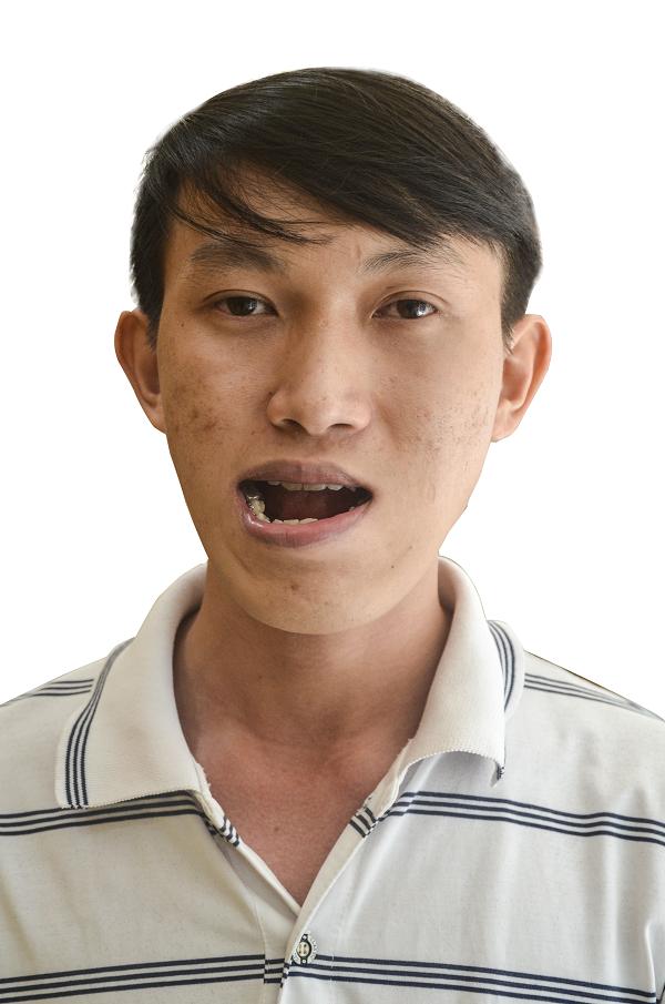 Duy Phương mang gương mặt biến dạng, méo mó trước khi phẫu thuật