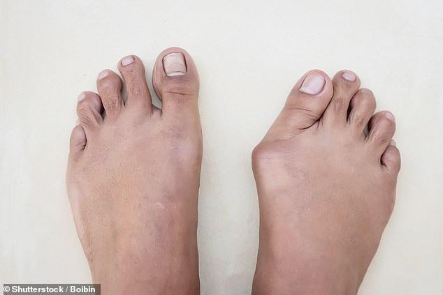 Giày dép không phù hợp sẽ làm cho vấn đề trở nên tồi tệ hơn.
