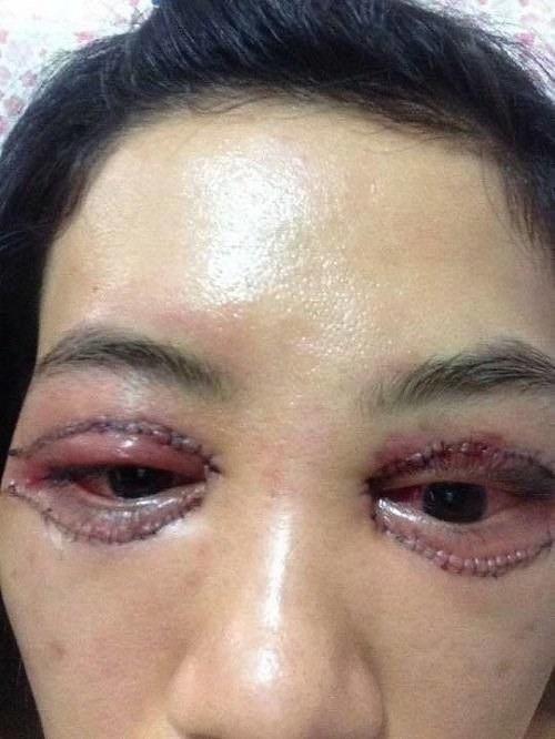 Phẫu thuật mắt sau tuy đơn giản nhưng có thể gây ra nhiều biến chứng nguy hại không đáng có