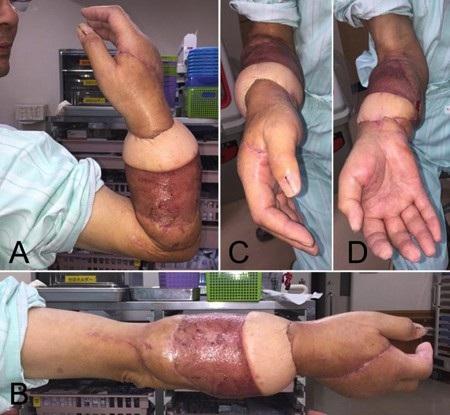 Cận cảnh cánh tay sau ca phẫu thuật ghép nối của các bác sĩ