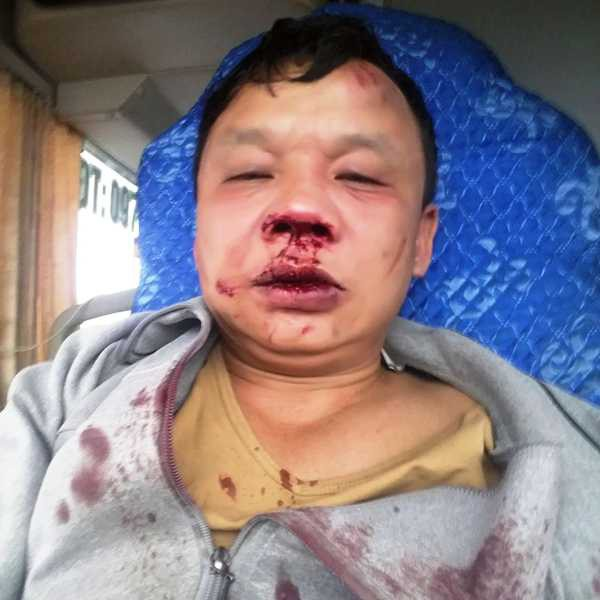 Anh Thiên nhập viện trong tình trạng đa chấn thương, mất nhiều máu.