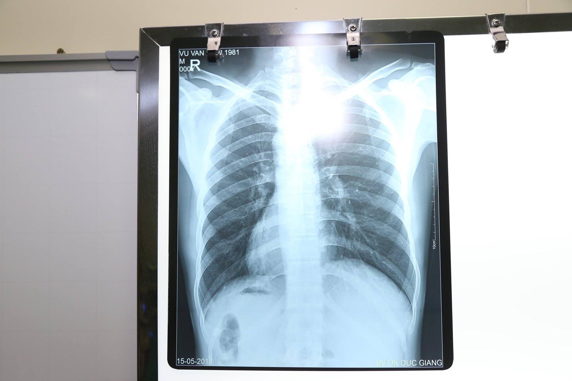 Kỳ lạ bệnh nhân có trái tim, nội tạng đảo ngược với người bình thường - Ảnh 1.