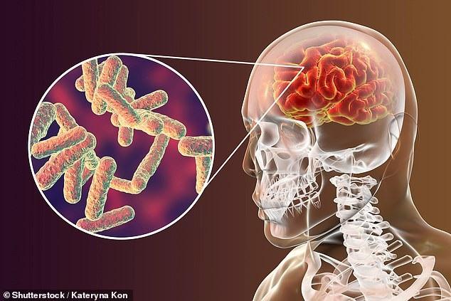 Giải mã những hiểu lầm về viêm màng não - Ảnh 1.
