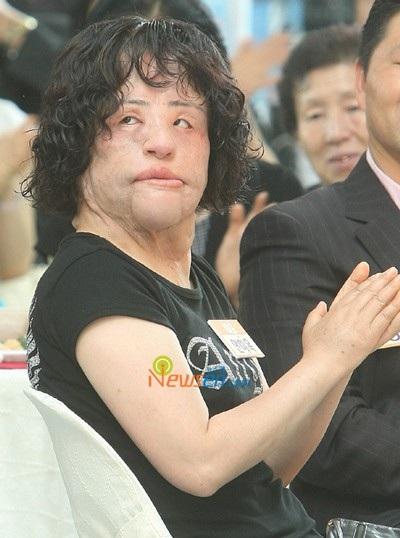 Năm 2009, Han Mi Oktừng phẫu thuật để loại bỏ những dị vật trên gương mặt.