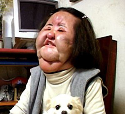 Gương mặt của Thảm họa thẩm mỹ xứ Hàn Han Mi Ok từng bị hủy hoại nặng nề vì nghiện dao kéo.