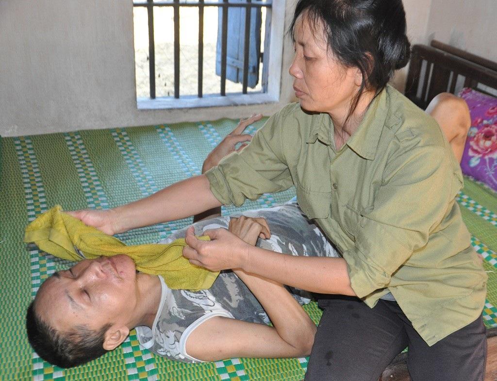 Bị ấu trùng giun đũa chó, người đàn bà khốn khổ không được đi viện vì phải ở nhà chăm 2 em thần kinh - Ảnh 2.