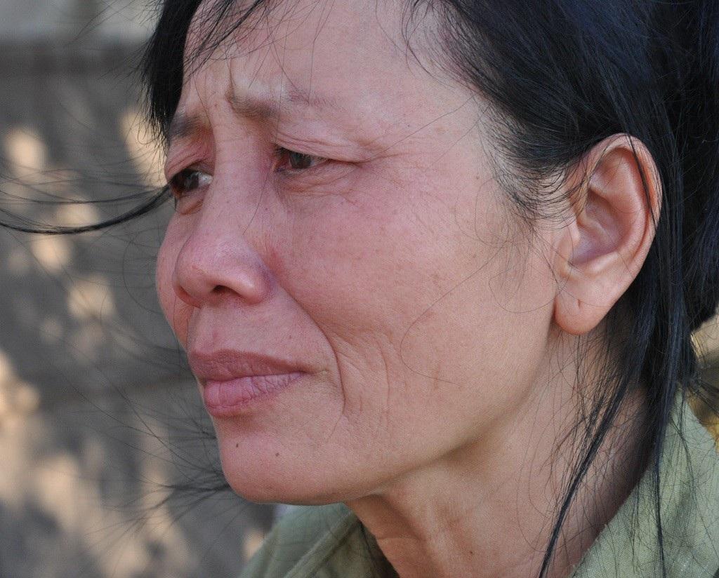 Bị ấu trùng giun đũa chó, người đàn bà khốn khổ không được đi viện vì phải ở nhà chăm 2 em thần kinh - Ảnh 6.