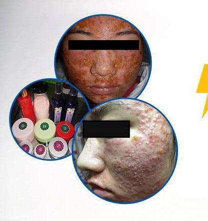 Rùng mình gương mặt như mảng cơm cháy của nữ sinh 19 tuổi sau chữa mụn tại spa - 1