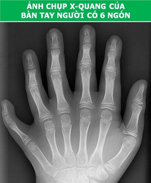Cơ thể con người cực lạ qua các công nghệ chụp, quét y học hiện đại - Ảnh 1.