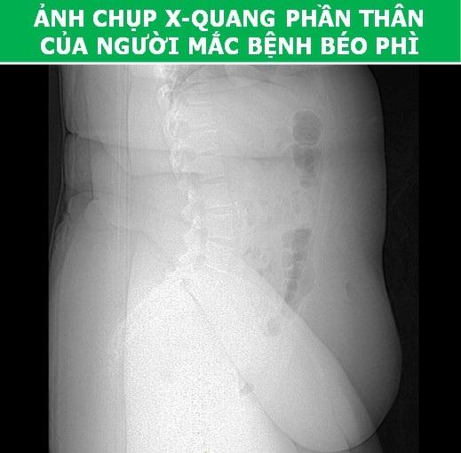 Cơ thể con người cực lạ qua các công nghệ chụp, quét y học hiện đại - Ảnh 5.