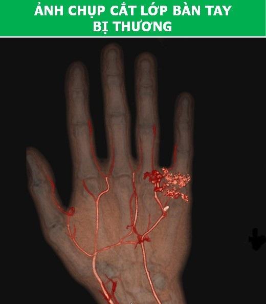 Cơ thể con người cực lạ qua các công nghệ chụp, quét y học hiện đại - Ảnh 7.