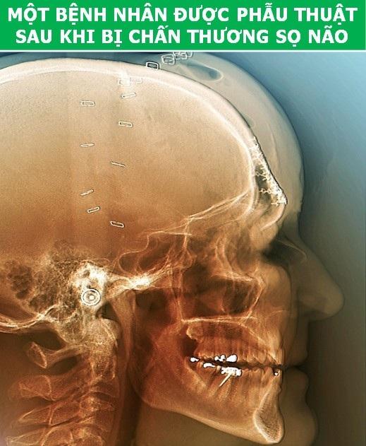 Cơ thể con người cực lạ qua các công nghệ chụp, quét y học hiện đại - Ảnh 8.