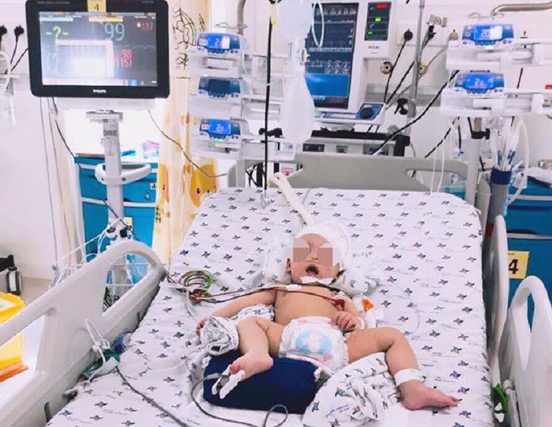 Bé 8 tháng tuổi đột ngột co giật vì xuất huyết não cấp không rõ nguyên nhân - Ảnh 1.
