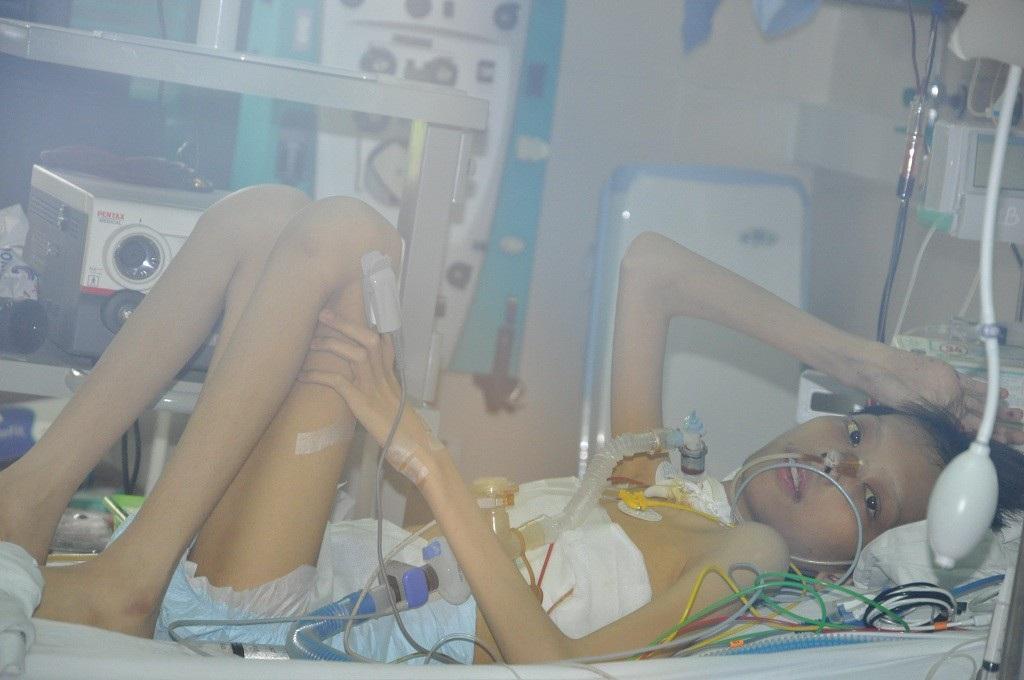 Ánh mắt cầu cứu khẩn thiết của cậu bé ghép phổi từ người chết não - Ảnh 2.