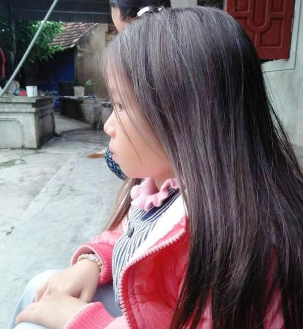Bị bệnh lạ nên mái tóc em Bùi Thị Ngọc Trâm bạc trắng như cụ bà.