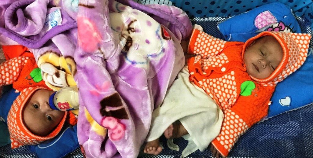 Thương bé sinh đôi chống chọi với bệnh tim bẩm sinh phức tạp - Ảnh 2.