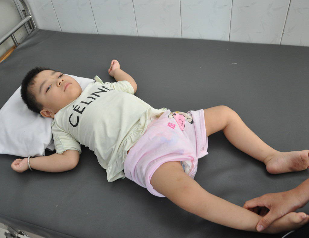 Ánh mắt cầu cứu sự sống của bé 3 tuổi bị viêm não - Ảnh 5.