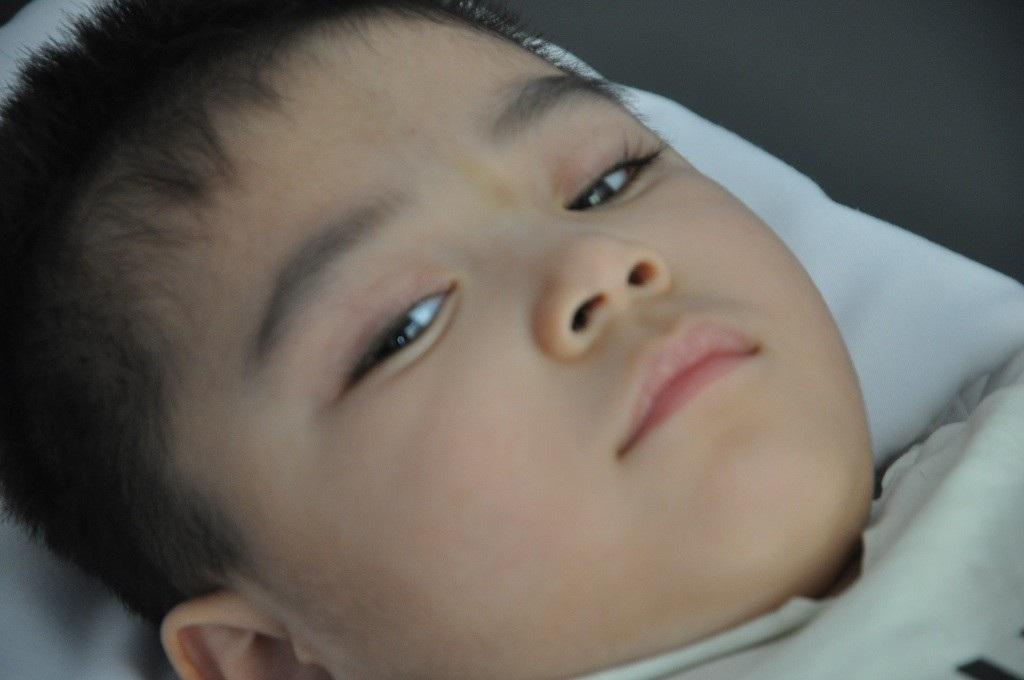 Ánh mắt cầu cứu sự sống của bé 3 tuổi bị viêm não - Ảnh 1.