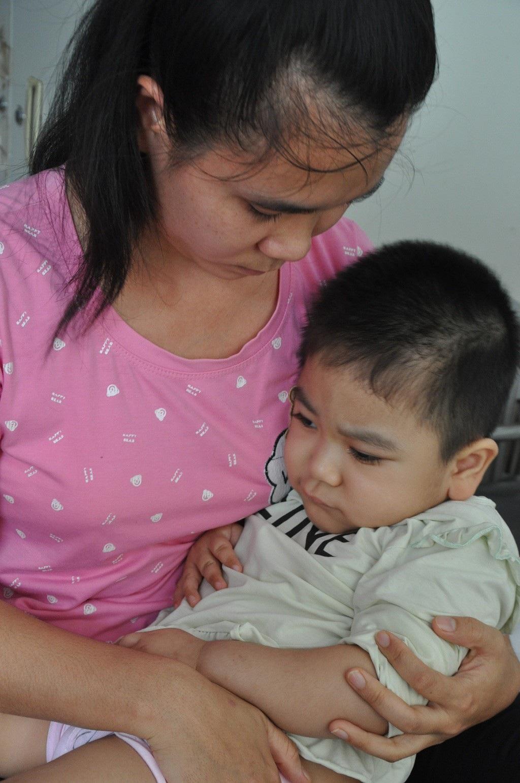 Ánh mắt cầu cứu sự sống của bé 3 tuổi bị viêm não - Ảnh 2.