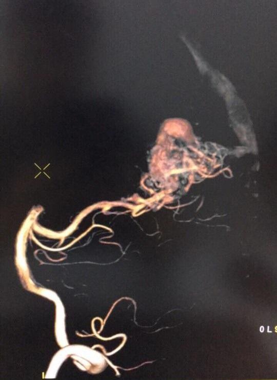 Hình ảnh mạch máu dị dạng của bệnh nhân Ngọc Anh (Ảnh: BS cung cấp)