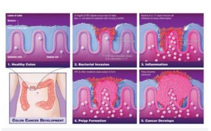 Vi khuẩn đóng vai trò quan trọng trong việc thúc đẩy ung thư ruột kết - 1